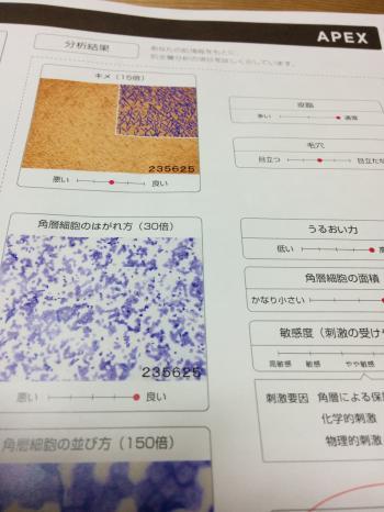 肌診断の詳しい中身
